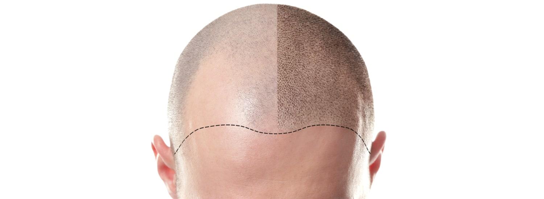 Greffe de cheveux et traitements alopécie à Perpignan