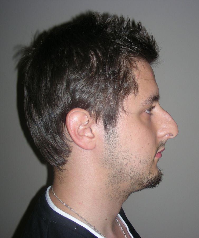 rhinoplastie chirurgie du nez corriger imperfections nez dr canizares chirurgien esth tique. Black Bedroom Furniture Sets. Home Design Ideas