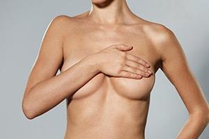 Réduction mammaire, hypertrophie seins, Montpellier, Béziers, Carcassonne