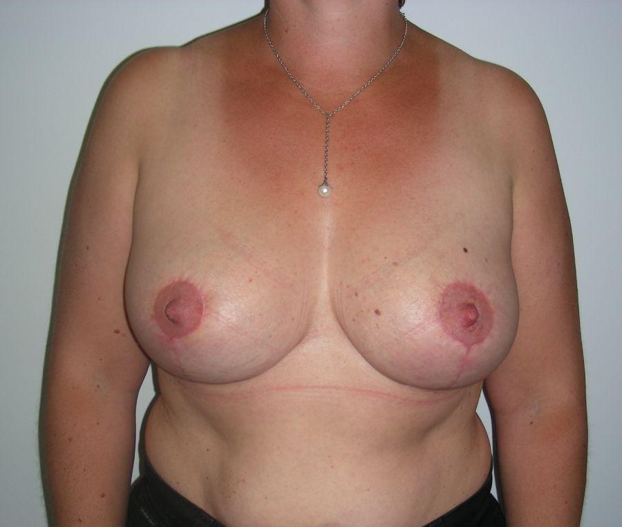 Risque de seconde réduction mammaire