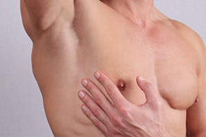 Gynécomastie, chirurgie esthétique glandes mammaires hommes, Béziers