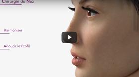 Rhinoplastie / chirurgie du nez