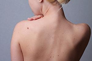 Chirurgie cutanée. Tumeurs et lésions de la peau à Perpignan, Béziers