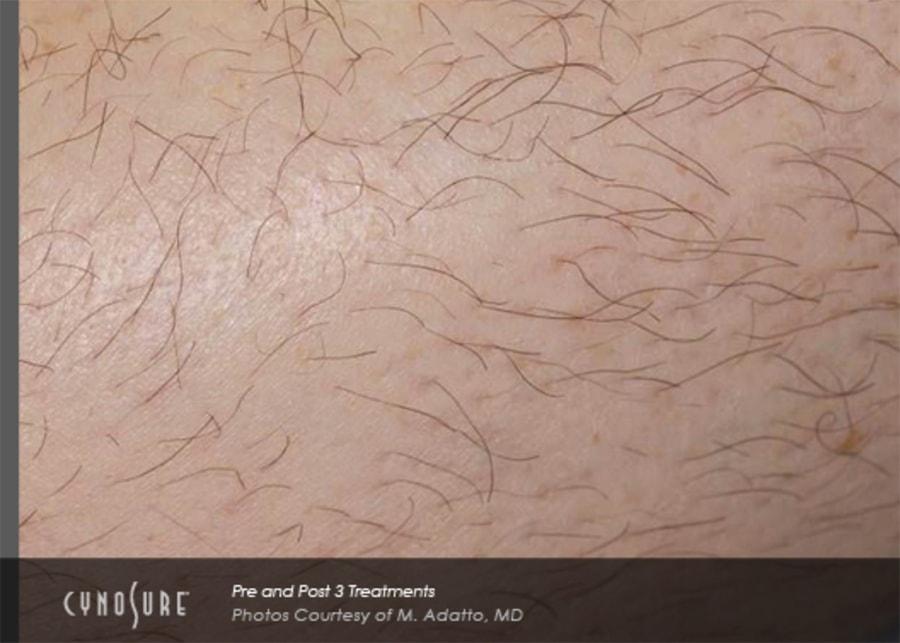 epilation laser d finitive perpignan b ziers montpellier narbonne. Black Bedroom Furniture Sets. Home Design Ideas