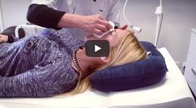 Laser vasculaire télangiectasie faciale